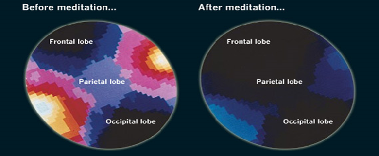 Inside of the brain before and after meditation